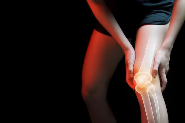 Concepto médico, mujer que sufre dolor en la rodilla - radiografía esquelética,