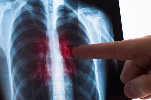 Concepto de radiografía pulmonar. médico de radiología examinando una radiografía de tórax de una paciente con cáncer de pulmón o neumonía.