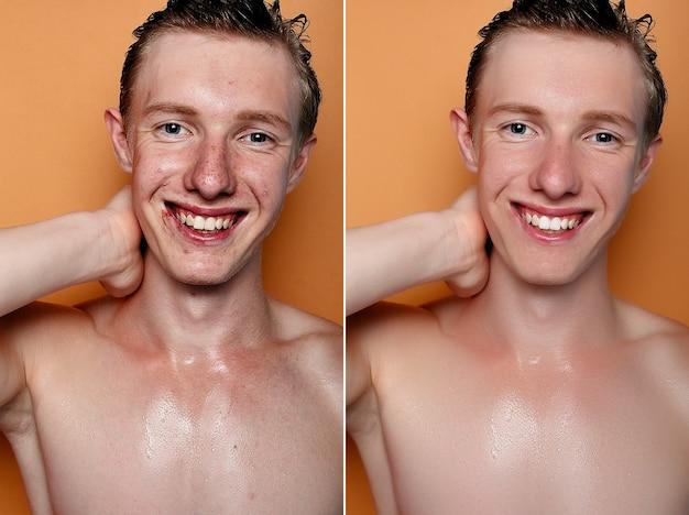 Concepto de salud, personas, juventud y belleza: antes y después de la operación cosmética. retrato de hombre joven. antes y después de un procedimiento cosmético o plástico, terapia anti-edad, eliminación del acné, retoques.