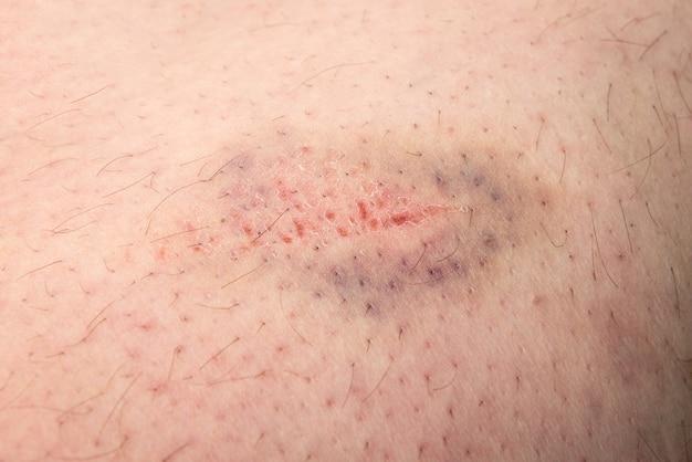 Contusión en la piel de la pierna masculina
