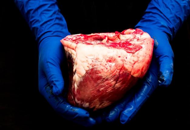 Corazón en la mano de un cirujano.