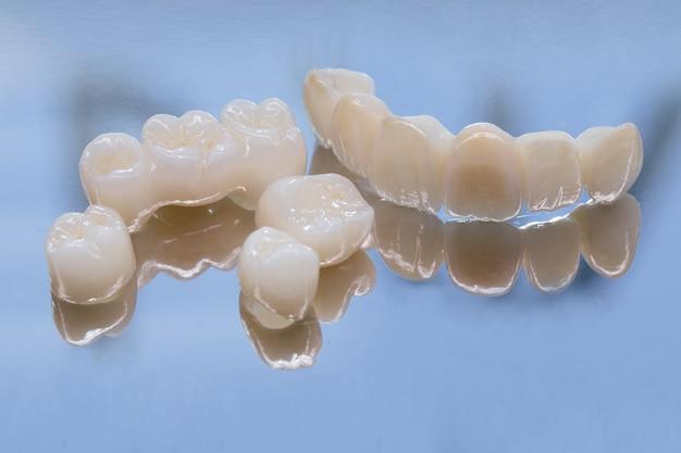 Coronas dentales de cerámica sin metal. circonio cerámico en versión final. tinción y glaseado. diseño de precisión y materiales de alta calidad.