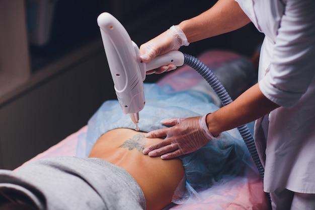 Cosmetóloga haciendo láser profesional de eliminación de tatuajes