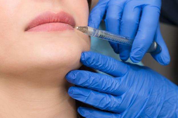 Cosmetóloga realiza procedimiento de aumento de labios en un salón de belleza. la esteticista inyecta ácido hialurónico en los labios para aumentar el volumen.