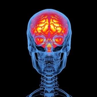 Cráneo humano de rayos x de renderizado 3d con cerebro aislado sobre fondo negro