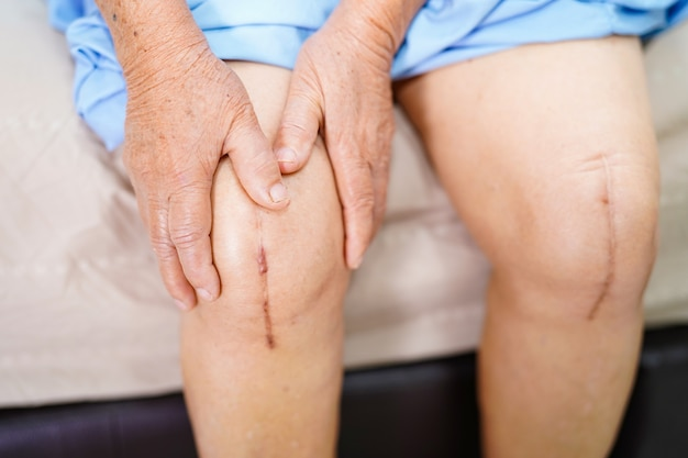 Dama asiática mujer paciente muestra cicatrices quirúrgicas de rodilla total de reemplazo articular