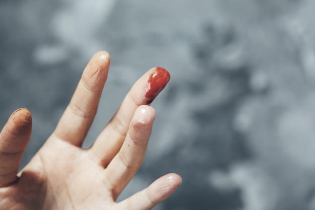 Dedo ensangrentado mujer