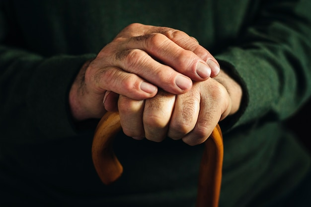 Dedos artríticos nudosos de un anciano
