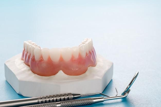 Dentadura completa o dentadura completa sobre fondo azul.