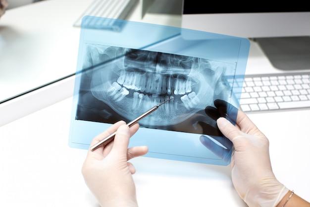 Dentista analiza foto de rayos x