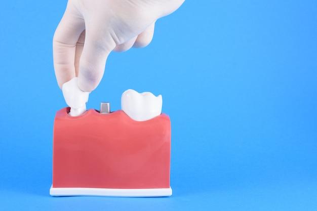Dentista de boca falsa en azul