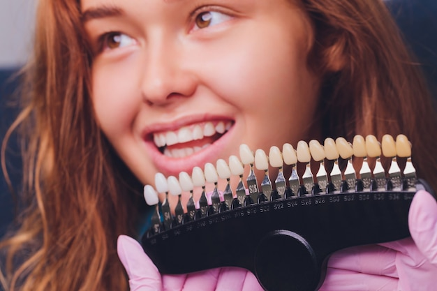El dentista compara el color de los dientes del paciente con muestras para el tratamiento de blanqueamiento.