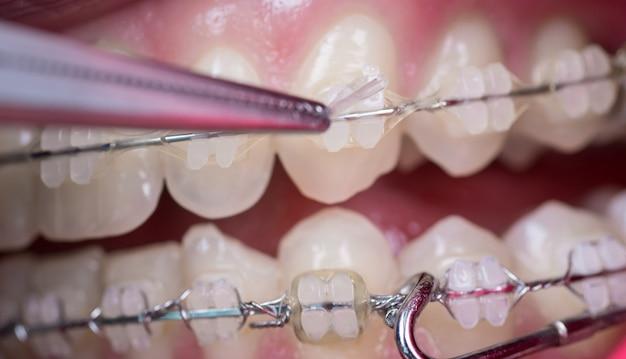 Dentista que trata los dientes con brackets de cerámica, utilizando mosquitos en el consultorio dental.