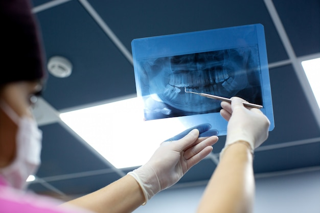 El dentista revisa la foto de rayos x de la boca