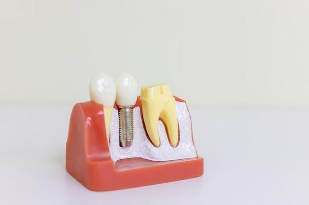 Dentst dientes protésicos dentales, encías, raíces que enseñan el modelo de estudiante con implante de tornillo de metal de titanio