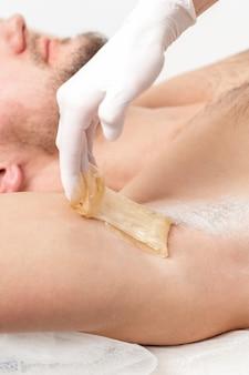 Depilación y depilación de axilas masculinas con pasta de azúcar líquida. mano de cosmetóloga aplicando pasta de cera en la axila del hombre. concepto de axila suave