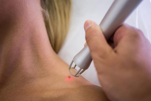 Dermatólogo que quita el lunar del hombro de la mujer