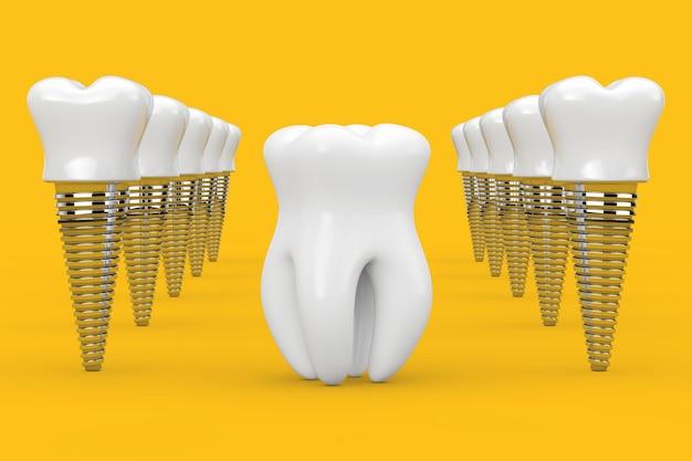 Diente sano premolar entre filas de implantes dentales sobre un fondo amarillo. representación 3d