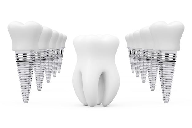 Diente sano premolar entre filas de implantes dentales sobre un fondo blanco. representación 3d