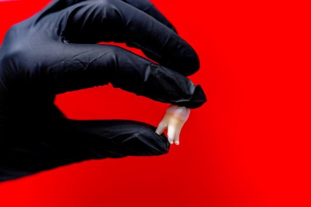 Dientes artificiales en la mano del dentista. implante dental cerámico. modelo de diente en la mano del dentista. concepto de implantación dental.