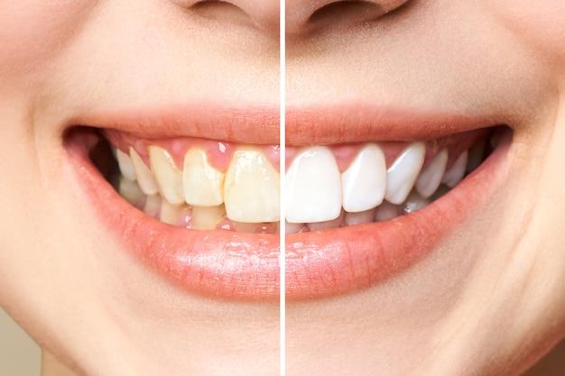 Dientes de mujer antes y después del blanqueamiento. la imagen simboliza, la estomatología.