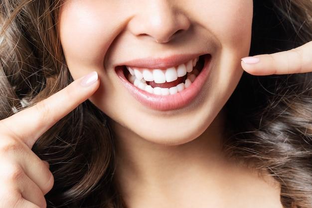 Los dientes sanos perfectos sonríen de una mujer joven. blanqueamiento dental. clínica dental paciente. la imagen simboliza la odontología del cuidado bucal, la estomatología.