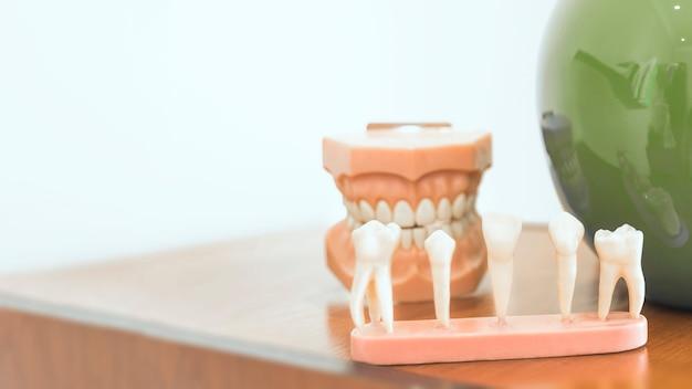 Diferentes tipos de dientes modelo en la mesa