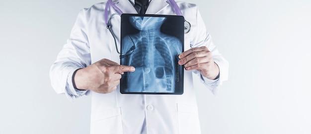 Doctor examinando la película de rayos x de tórax del paciente en el hospital.