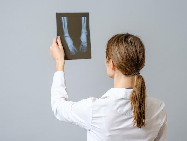 Doctora examinando imágenes de rayos x de las piernas del bebé recién nacido