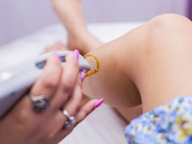 Una doctora está haciendo una depilación láser en la piel de las piernas de una mujer.