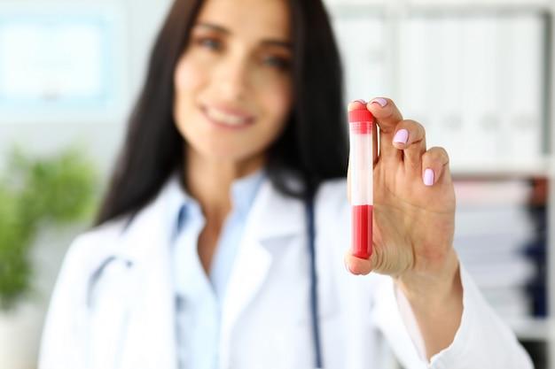 Doctora mano sujetando el tubo de ensayo de plástico que contiene líquido rojo