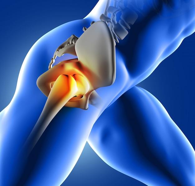 Dolor en la  articualción de la cadera