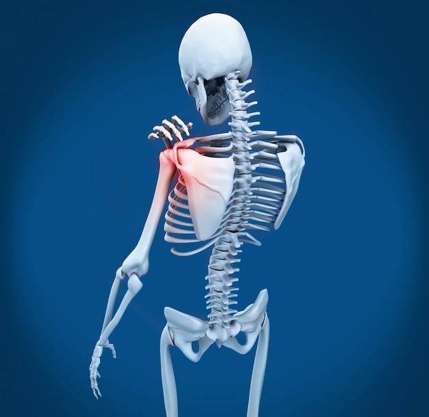 Dolor en el hombro en el esqueleto