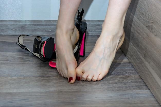 Dolor en el pie femenino de los talones