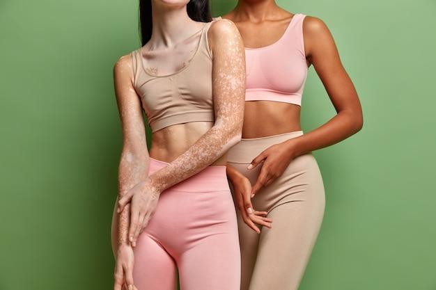 Dos mujeres de diferentes condiciones de piel abrazando