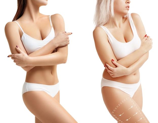 Dos mujeres jóvenes gruesas y delgadas tienen diferentes figuras concepto de comparación