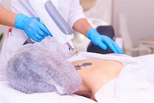 Eliminación de tatuajes con láser en una clínica de cosmetología.