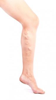 Enfermedad de flebeurismo en las piernas sobre fondo blanco.
