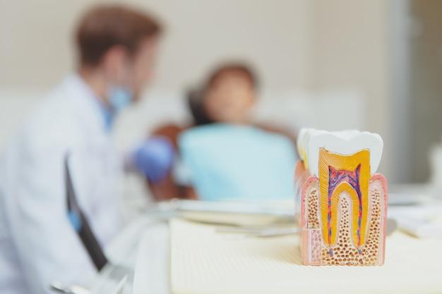 Enfoque selectivo en un modelo de diente y dentista hablando con su joven paciente