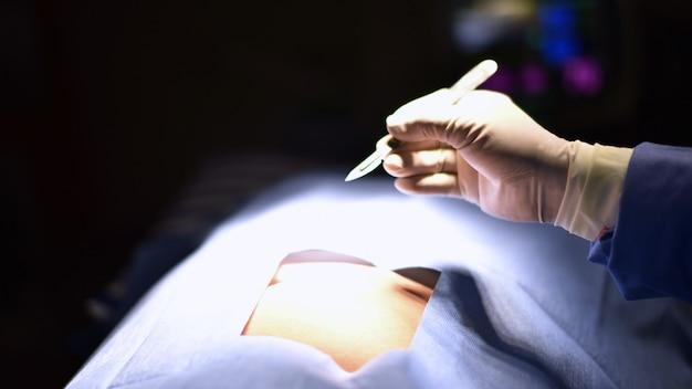 Equipo cirujano trabajando en quirófano. luz quirúrgica en quirófano.
