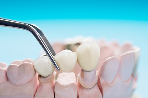 Equipo de odontología de implantes de primer plano / prótesis o prótesis / implantes de coronas y puentes de dientes y modelo de restauración de reparación rápida.