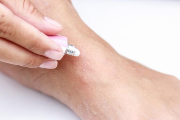 Erupción por sudor en el pie con crema para curar