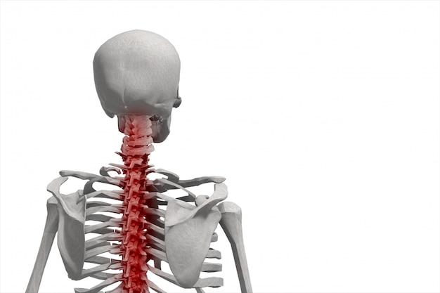 Esqueleto humano, ilustración de la columna vertebral, dolor de espalda aislado
