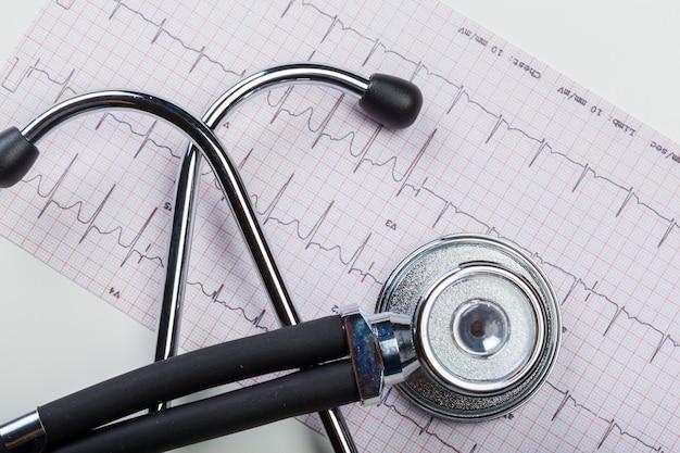 Estetoscopio de metal en cardiograma