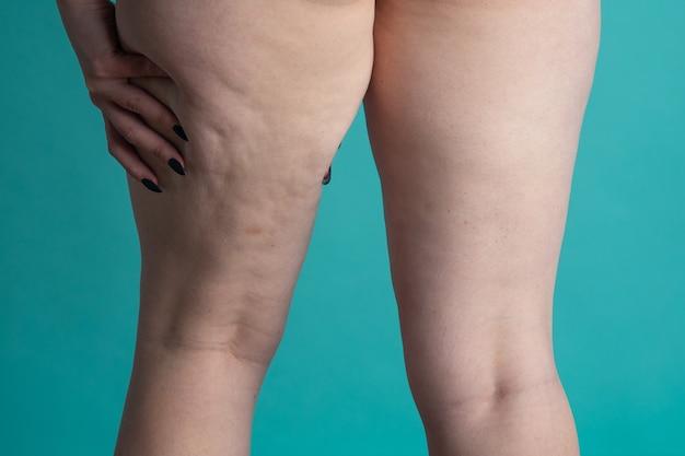Estómago y piernas femeninas cubiertas de estrías con celulitis.
