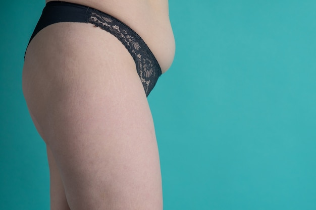 Estómago y piernas femeninas cubiertas de estrías con celulitis