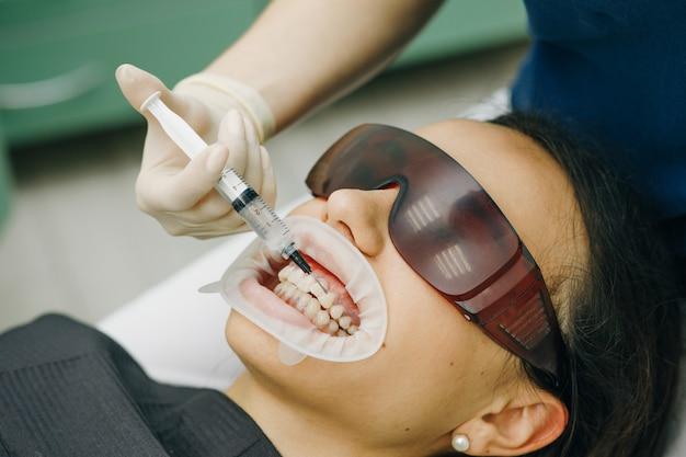 Estomatólogo blanqueando dientes para paciente en una clínica