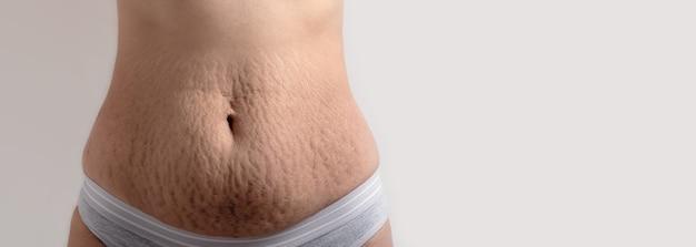 Estrías de la piel en el vientre femenino