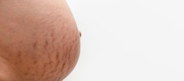 Estrías en un vientre embarazado, maqueta panorámica con espacio para texto
