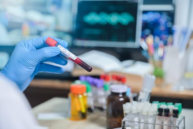 Etiqueta vdrl de vih tubo de prueba de sangre en mano de científico médico en sala de laboratorio en el hospital, tubo de prueba de sangre para análisis para diagnóstico de resultados de enfermedades